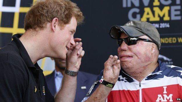 Prince Harry at Invictus Games Orlando with burn wound soldier